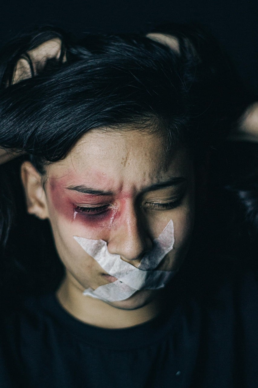 אישה פצועה